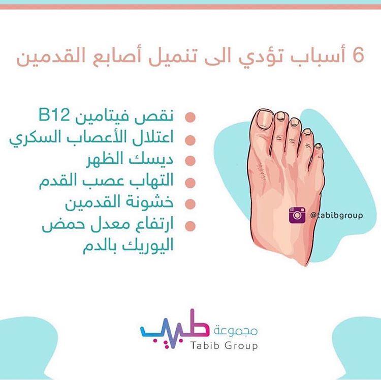 6 أسباب تؤدي إلي تنميل أصابع القدمين